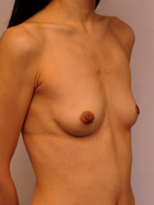 Before photo - Breast Augmentation
