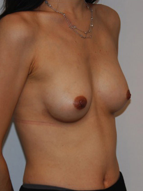 After Photo - Breast Augmentation